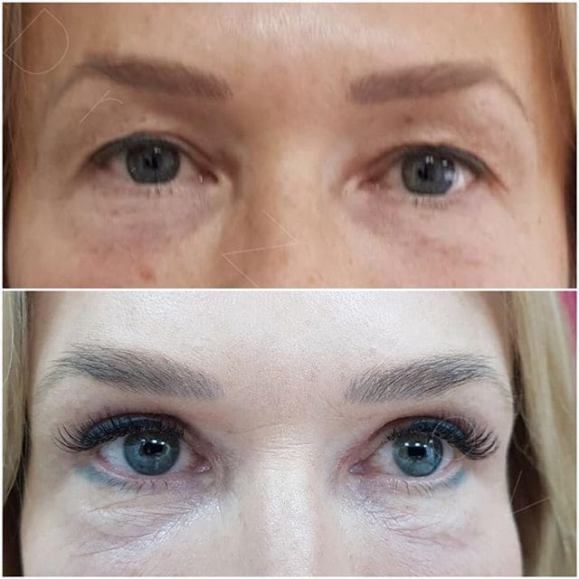 Upper Eyelid Blepharoplasty + brow lipofiling. 3 weeks post-op