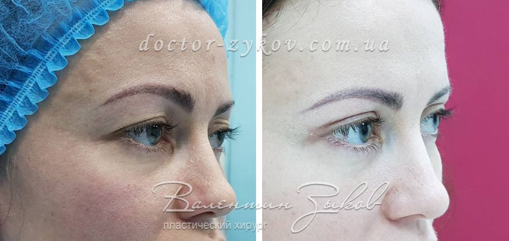 Upper Eyelid Blepharoplasty. 20 days post-op