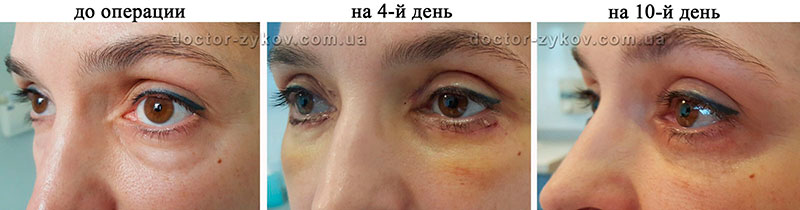 Classical blepharoplasty with excision of a skin flap from above 8 mm, from below 2 mm and removal of hernias