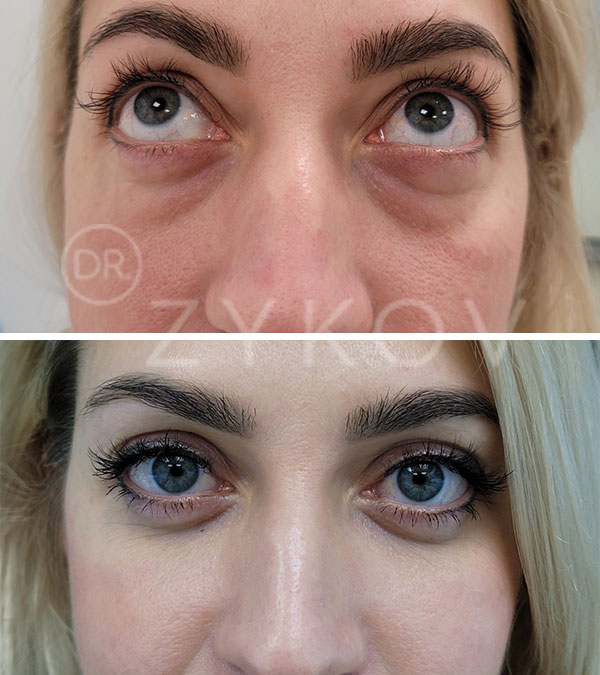 Transconjunctival Lower Blepharoplasty With Fat Repositioning, removal of 6 hernias, lipofilling of the lower orbital area