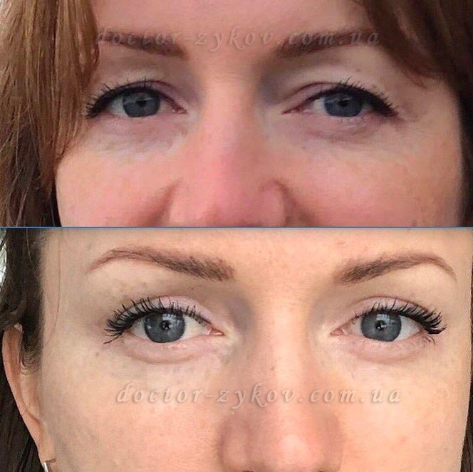 Upper Eyelid Blepharoplasty before and after