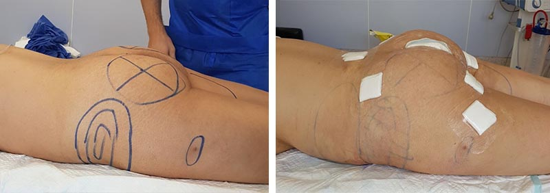 Augmentation of buttocks with Polytech implant of 300 ml in combination with lipofilling