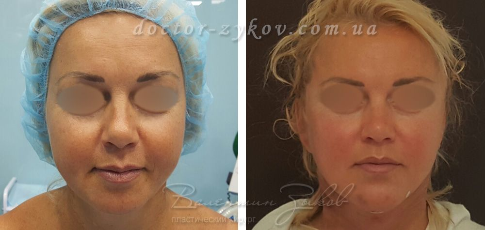 Neck lift, temporal facelift and chin enlargement with own fat of patient. 30 min after surgery