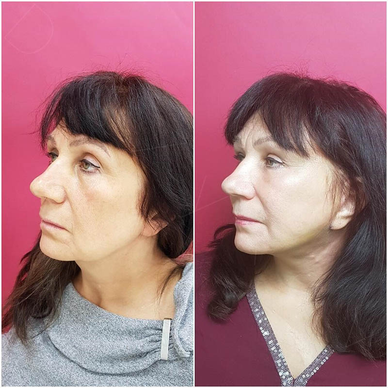 SMAS facelift and neck lift, 15 days after surgery