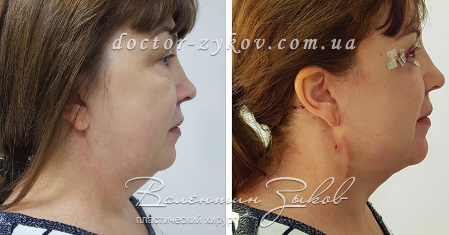 Neck lift without seams. Author's technique. Combination of liposuction with thread lift in one operation