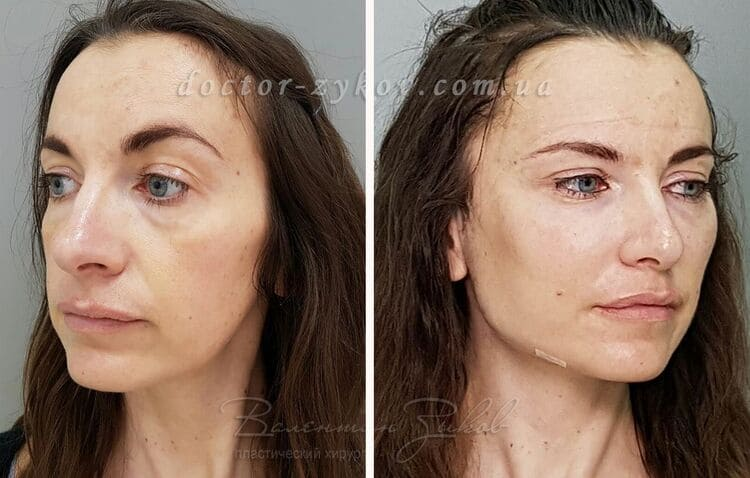Temporal facelift + lipofilling 1.5 hours after surgery