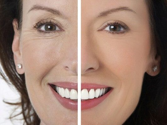 Nasolabial Folds treatment cost
