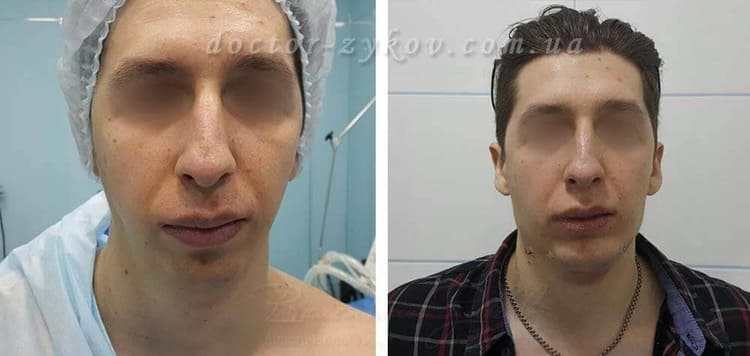 Reconstruction of the lower jaw with fat and neck liposuction. 2 hours post-op