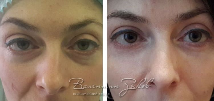 Lipofilling of the area under the eyes, cheeks and cheekbones