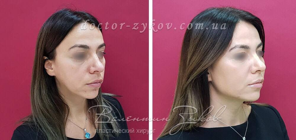 Lipofilling of the infraorbital region, cheekbones, cheeks, corners of the lower jaw. A total of 40 ml of fat