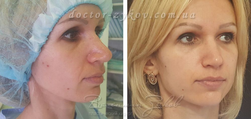 Face Lipofilling (upper orbit, temples, cheekbones, cheeks, angle of the lower jaw, chin)/  2 hours post-op