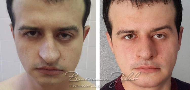 Lower jaw lipofilling and rhinoplasty
