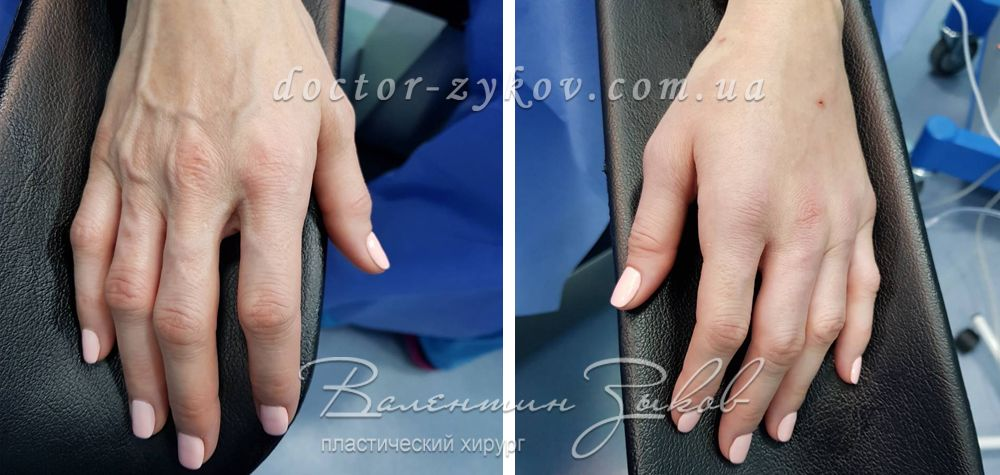 Lipo Grafting of hands
