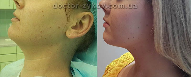 Tumecent neck liposuction before and after 10 days