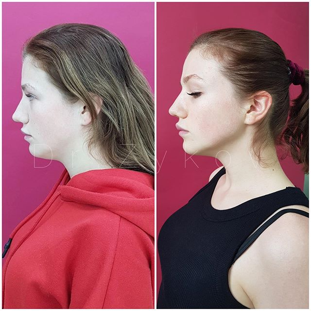 Tumecent liposuction of chin and neck with the formation of a youth angle