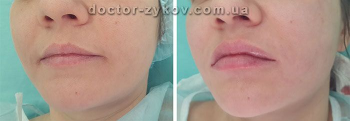Lip Enhancement (Paris Lip)