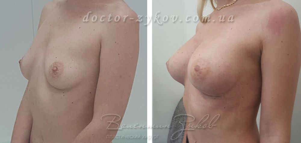 Anatomical implants Allergan 335 cc