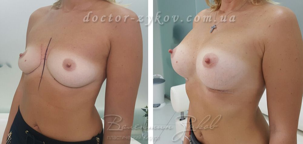 Breast augmentation with Polytech 315 cc anatomical polyurethane implants