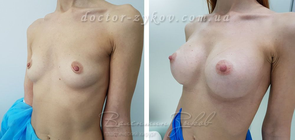Breast augmentation with polyurethane anatomical implants Polytech 425 cc