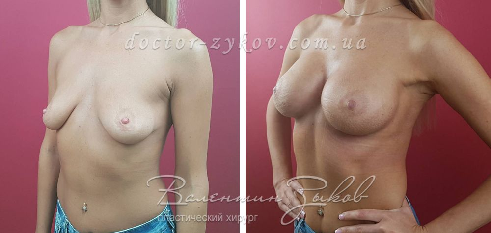 335 cc Allergan anatomical implants, under the muscle, 2 months post-op