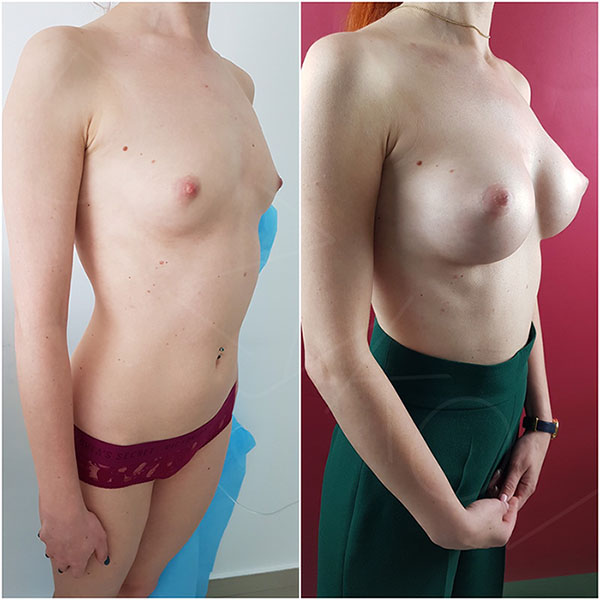 295 cc Polytech teardrop breast implants, 2 months post-op