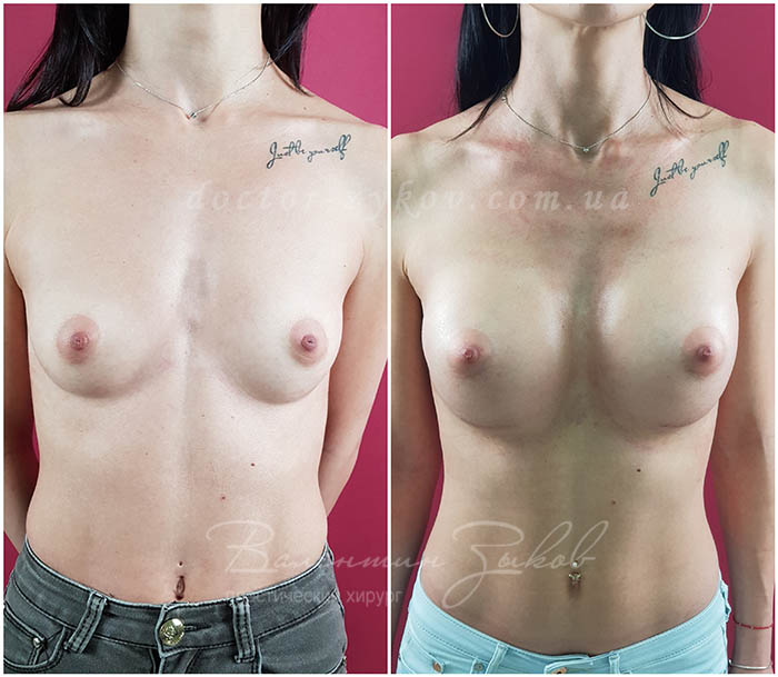 350 cc Polytech polyurethane teardrop-shaped implants under the muscle, 20 days post-op. From the first day you can lie on your side and raise your hands. The submarine fold fell 3 cm