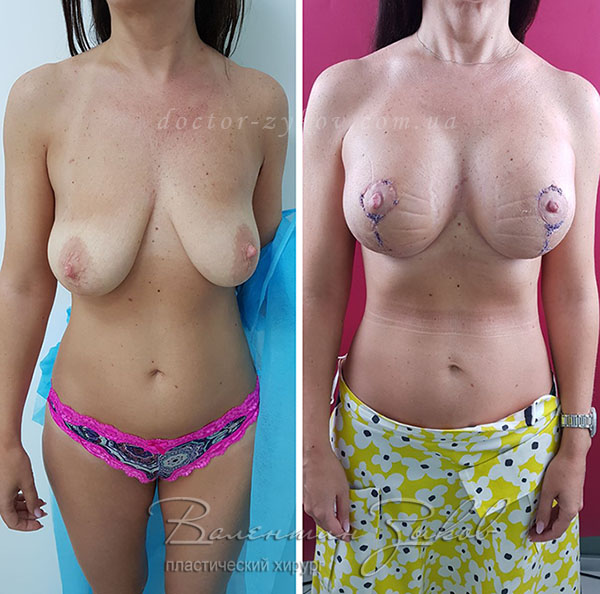 Breast lift with implants 250 cc. 4 weeks post-op. Seams processed with special glue. There is edema of the upper pole, which will go away with time