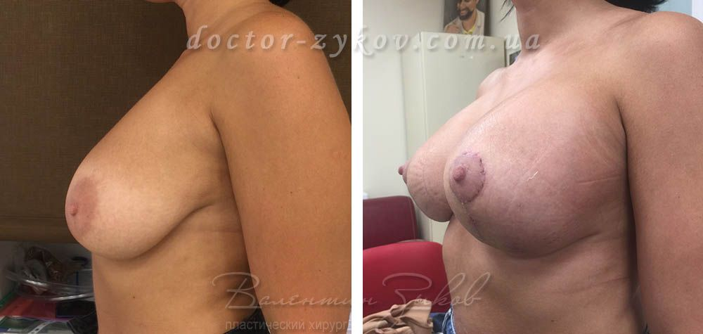 Beast lift with round implants Allergan 275 cc, 3 weeks post-op