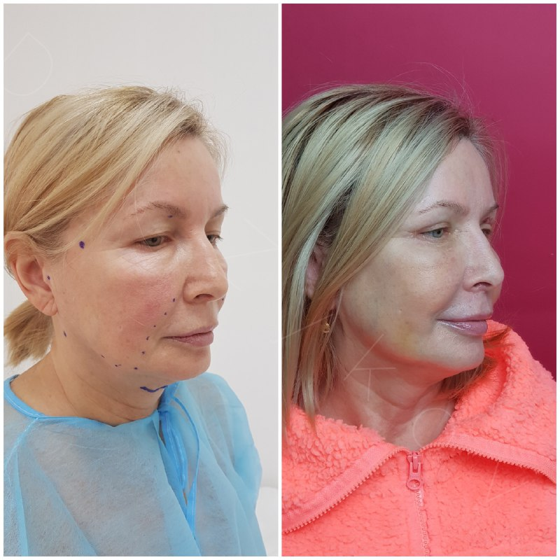 Upper blepharoplasty, temporal facelift + Threads Aptos. 6 days post-op