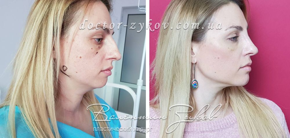 Lipofilling of the lower jaw, chin, cheekbones, infraorbital zone; transconjunctival blepharoplasty; closed rhinoplasty; neck liposuction; 7 days post-op