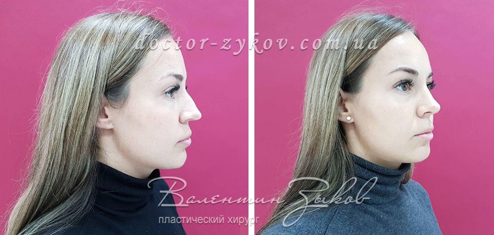 Closed rhinoplasty, 2 weeks post-op. Narrowing and reduction of the back, formation of columella, narrowing of the nostrils