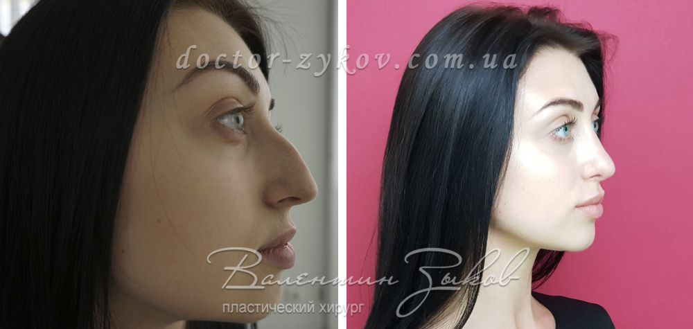 Open rhinoplasty + chin lipofilling after 4 monthes