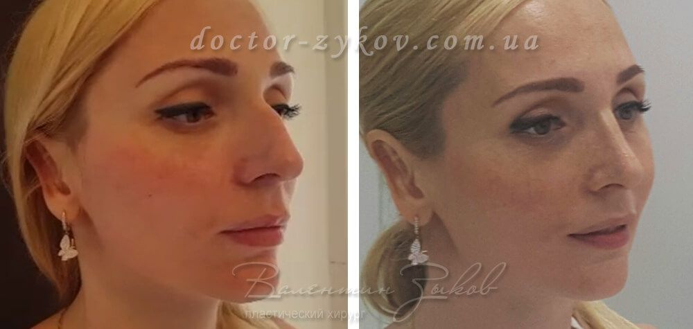 Rhinoplasty with osteotomy - before and after 8 days