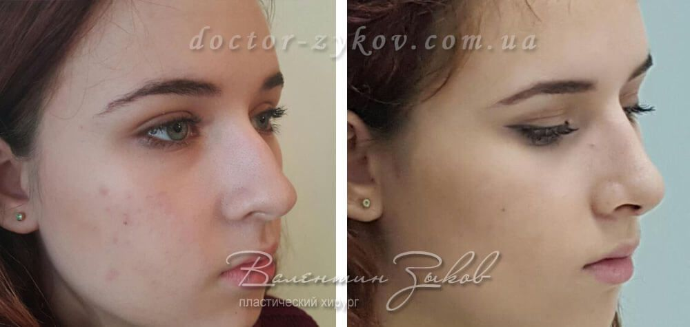 Open rhinoplasty: correction of the tip, back of the nose with osteotomy 9 days post-op