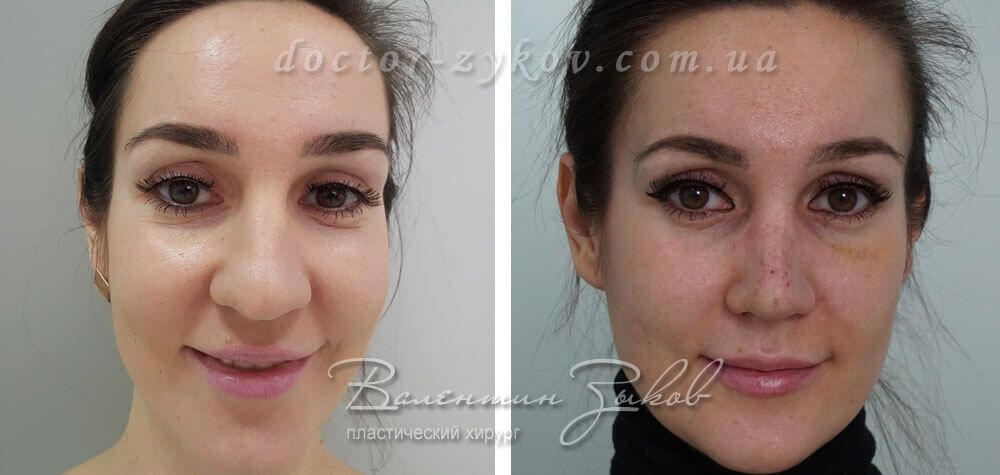 Rhinoplasty Nose tip correction