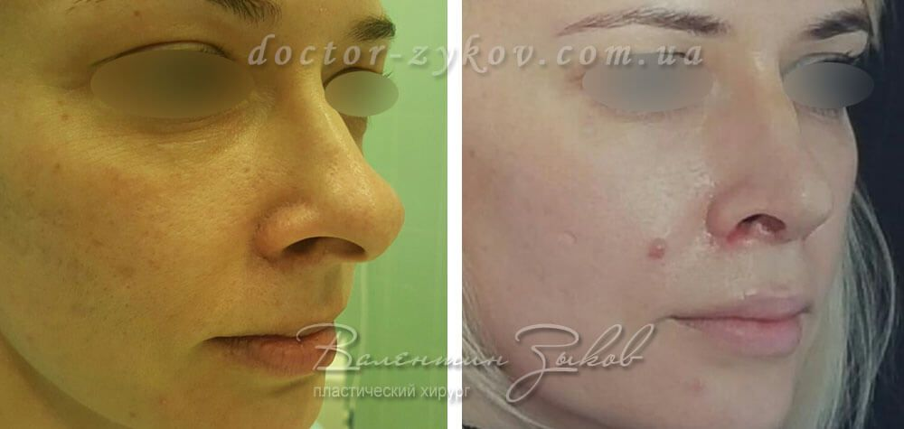 Rhinoplasty 10th day after surgery