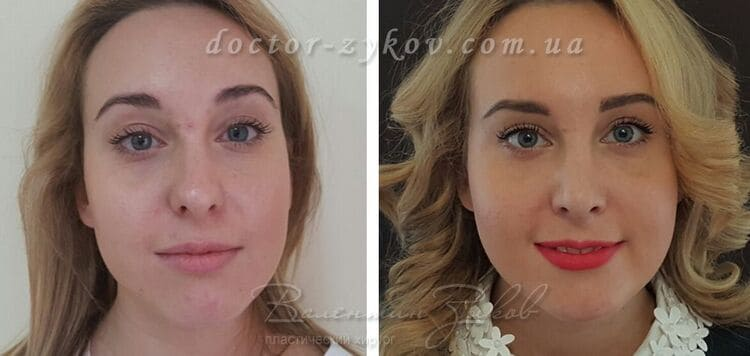 Rhinoplasty with correction of the back and tip of the nose, lipofilling of the chin, cheekbones and nasolacrimal groove