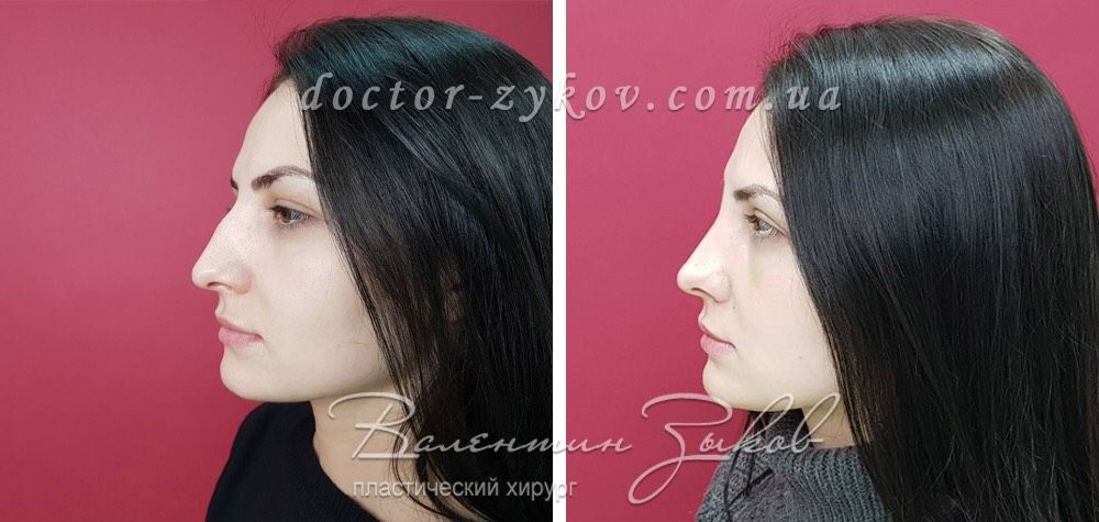 Closed piezo-ultrasonic rhinoplasty. 2 weeks post-op