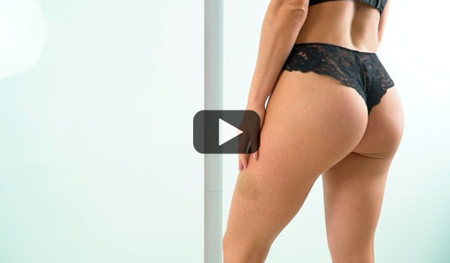 Buttock augmentation with POLYTECH implants 220 cc, examination 1 year after surgery