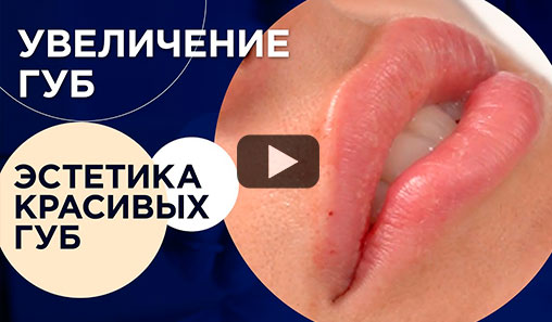 Lip augmentation with fillers. Procedure and the result