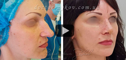 8 days after open rhinoplasty, correction of the back and tip of the nose. Lipofilling of temples, infraorbital zone, cheeks and jaw line