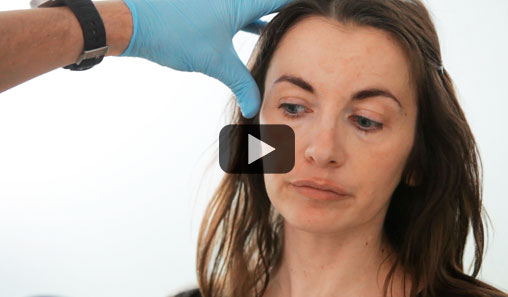 Facelift with lipofilling (patient 44 years old)